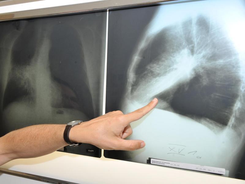 Bild zu Lungenkrebs