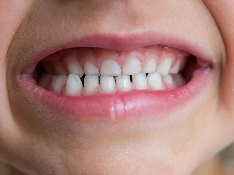 Bild zu Kinderzähne
