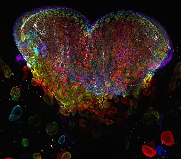 Bild zu Herziges Augenorgan einer Taufliegenlarve