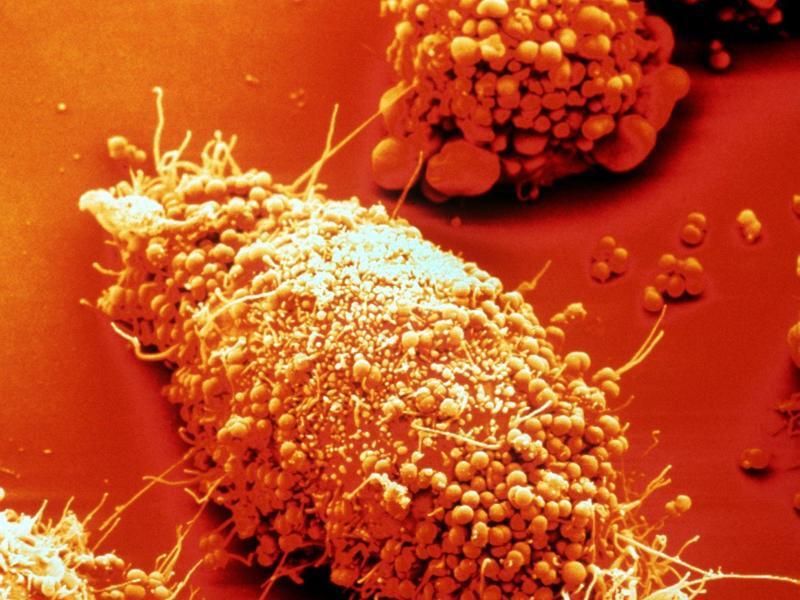 Bild zu Gonorrhoe-Erreger