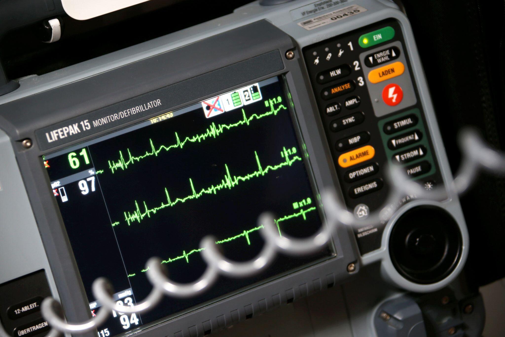 Bild zu EKG