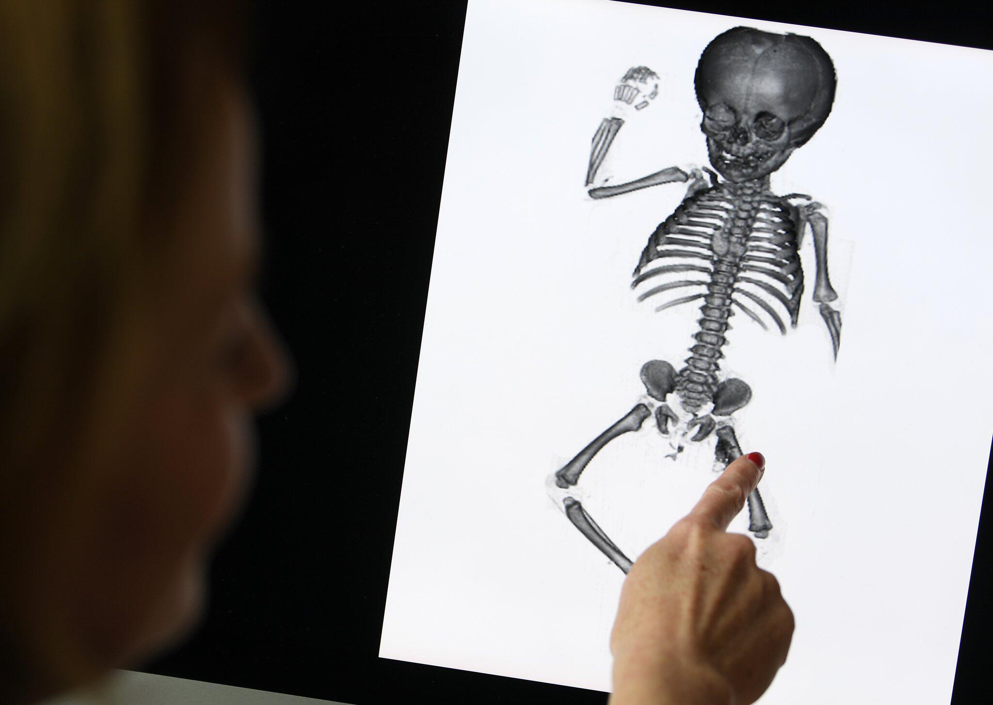 Bild zu Letzte Ruhe für Kinderleichen aus Anatomie