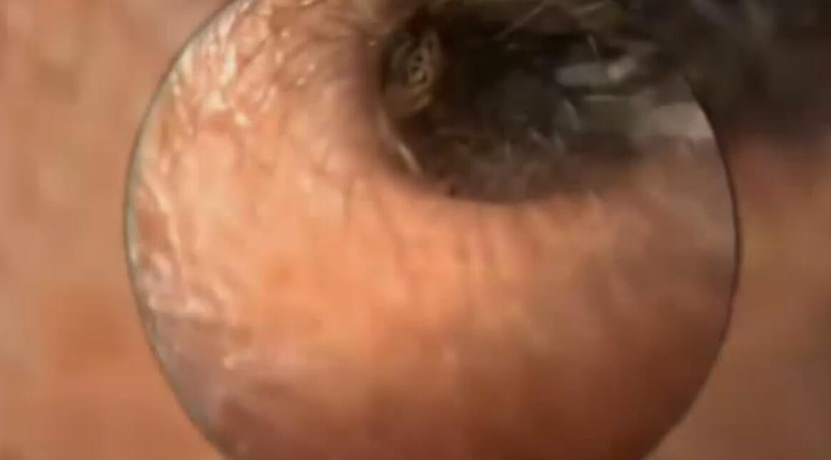 Bild zu Insekt im Ohr