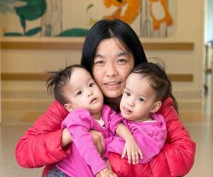 Operation soll siamesische Zwillinge trennen