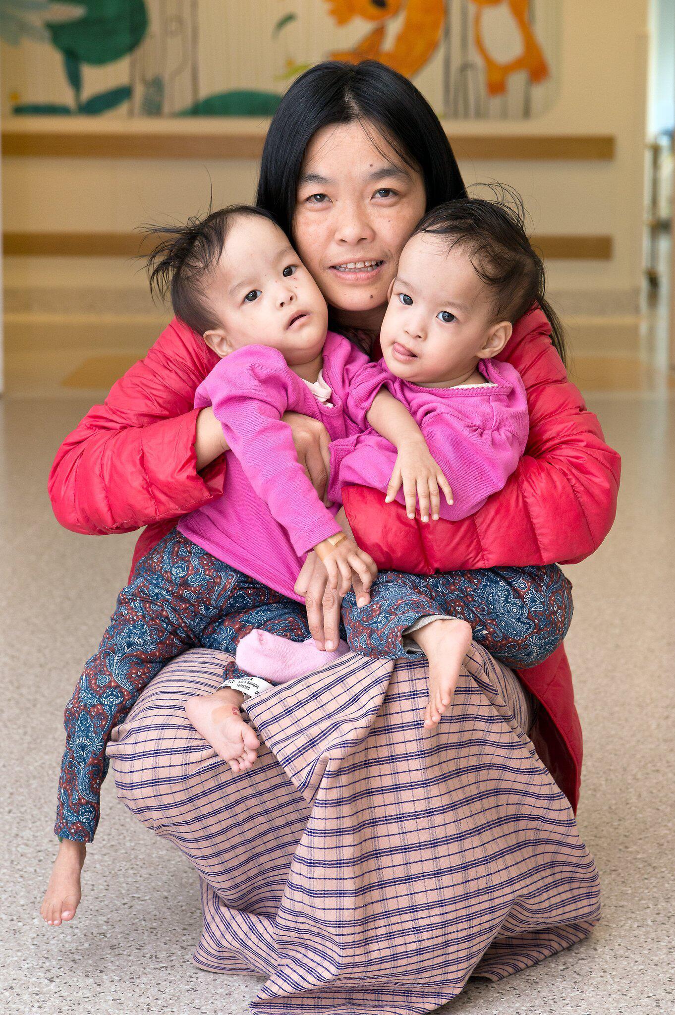 Bild zu Operation soll siamesische Zwillinge trennen