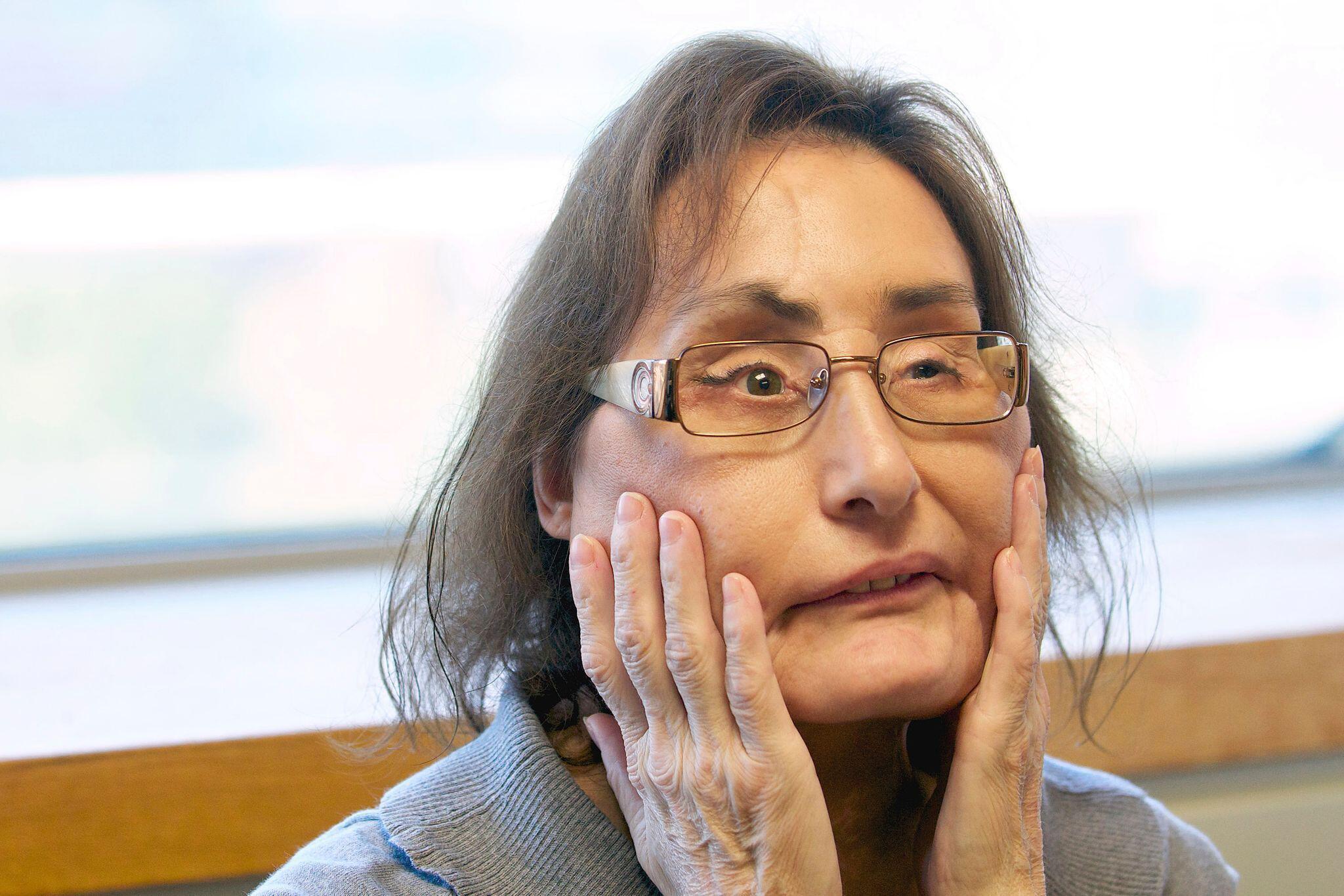 Bild zu Frau mit erster US-Gesichtstransplantation gestorben