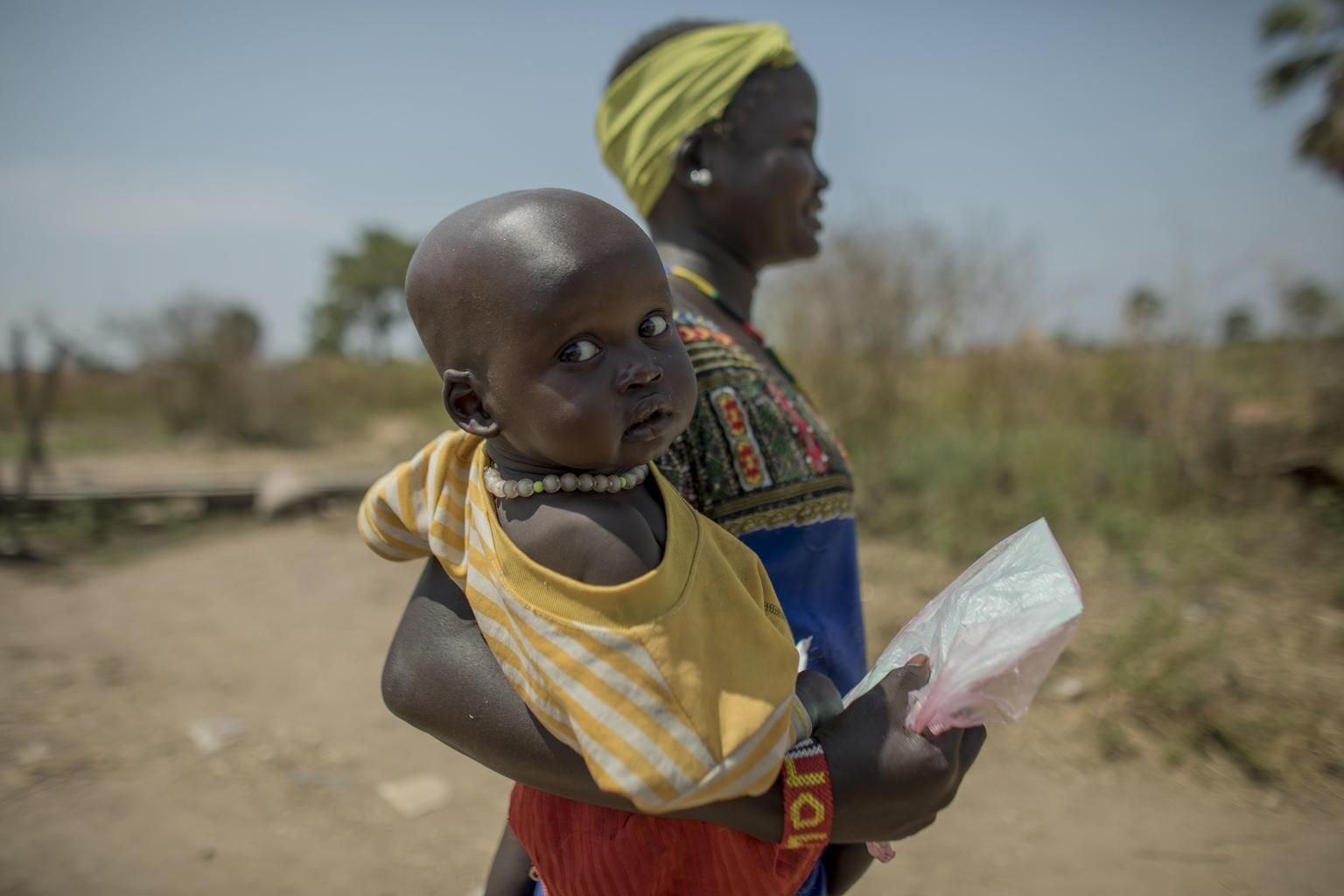 Bild zu Südsudan Mangelernährung
