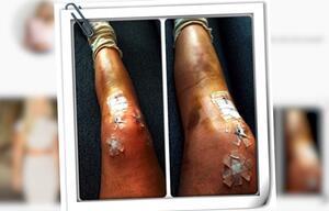 Schockfoto: Olympionikin Lindsey Vonn zeigt ihre verletzten Beine bei Instagram