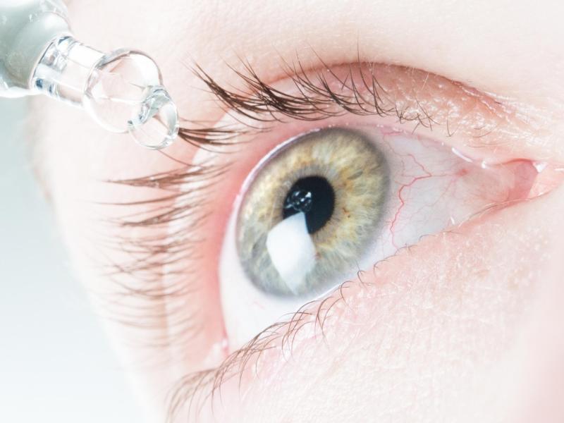 Bild zu Office-Eye-Syndrom