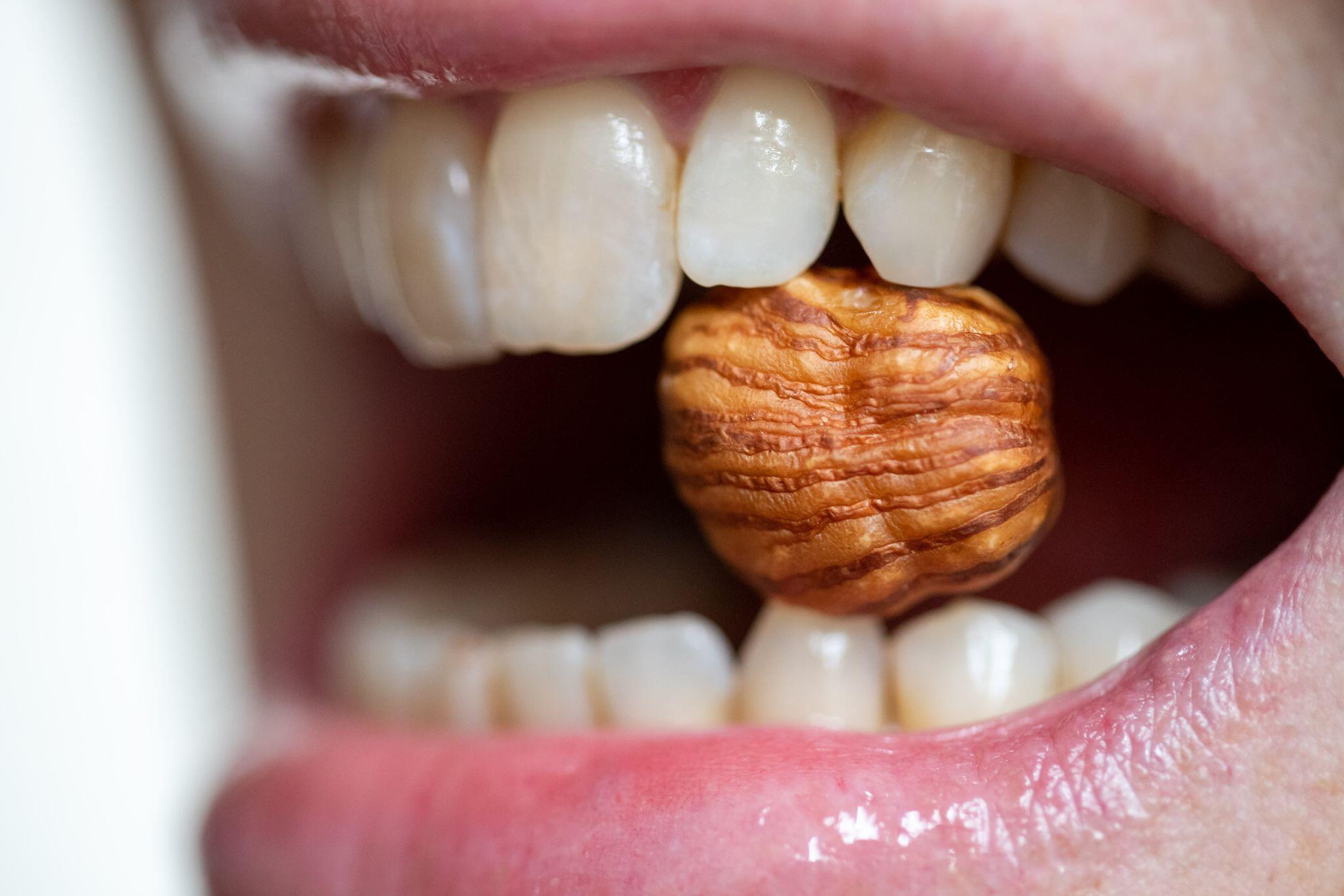 Bild zu Lebensmittel-Allergien - Nüsse