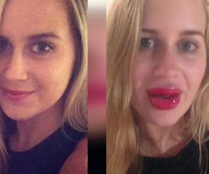Dicke Lippe riskiert: Lippenbooster-Panne