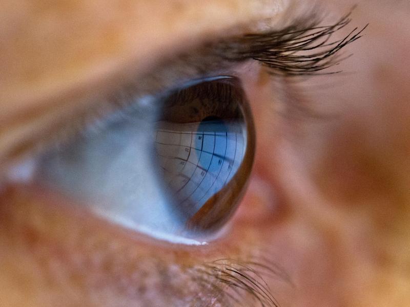 Bild zu Herpes am Auge