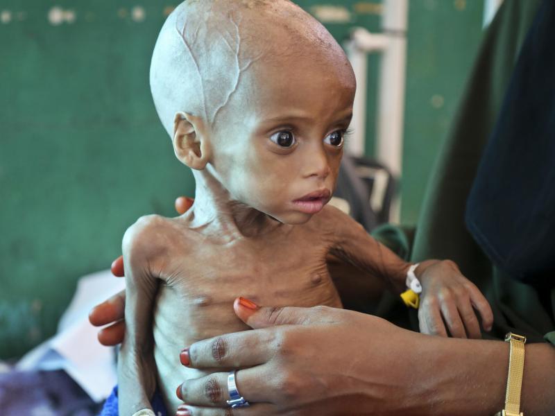 Bild zu Hungersnot in Somalia