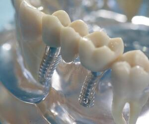 Zahnimplantate in einem Modell