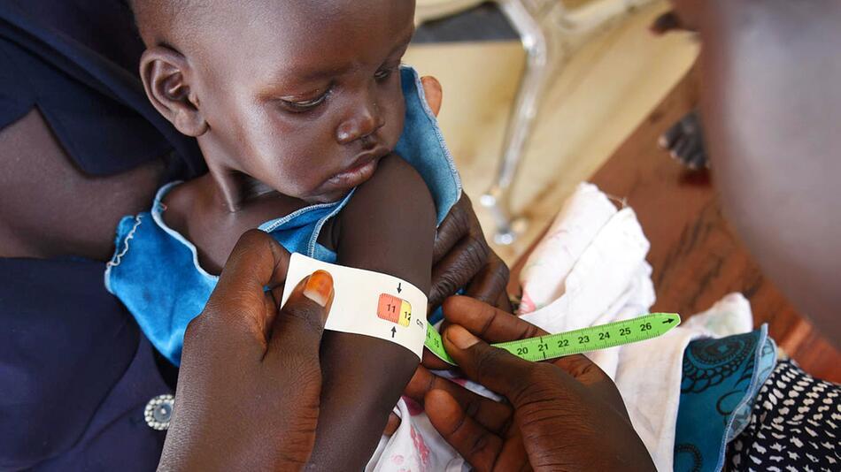 Mangelernährung im Südsudan