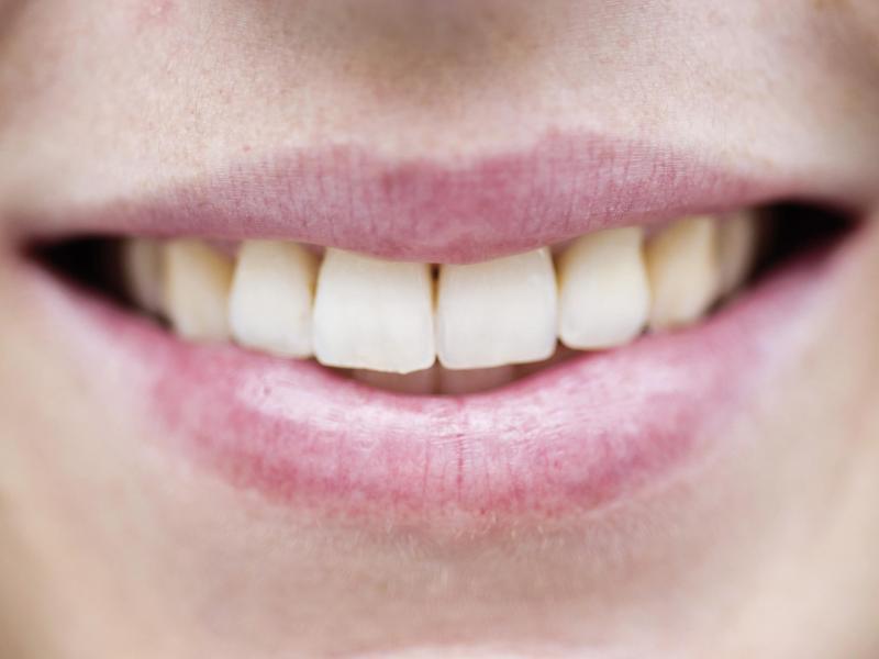 Bild zu Lippenpflege
