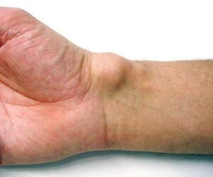 Überbein ohne Schmerzen